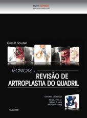 Tecnicas De Revisao De Artroplastia Do Quadril